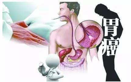 """你的胃癌,是你""""一手促成""""的!这些习惯真的要不得"""