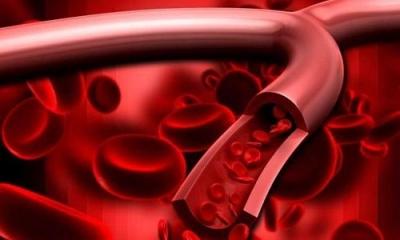 血管健康是基础!三个好习惯让你的血管年轻