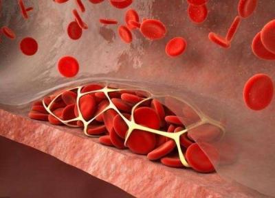血管养好,百病不扰:这6个小习惯,能让血管很舒服