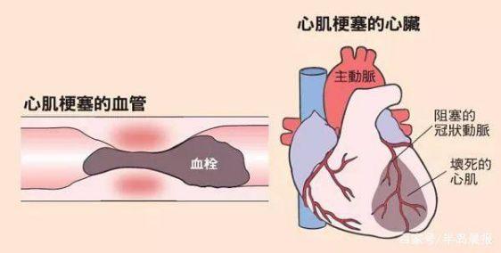 关于急性心肌梗死你必须知道的事