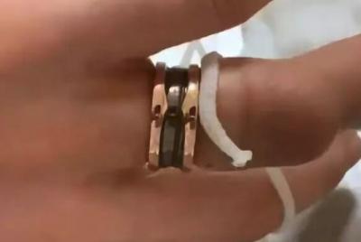 女子戴1万元戒指长胖后取不下来 花7万将其锯断