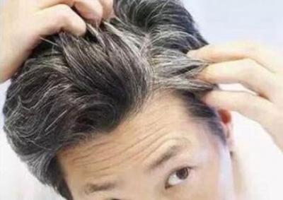 关于白发,你不知道的八件事