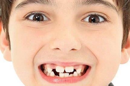 孩子乳牙迟迟不换 原因有很多