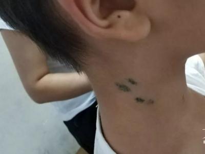 10岁男孩脖子上全是针眼 原因令人震惊!这些偏方你还在用吗?