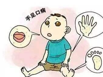 山东:6月份得流感的少了 感染手足口病的多了