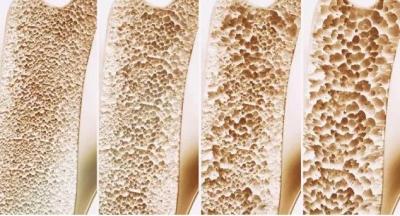 健康科普 ▏骨質疏松認識誤區,你了解嗎?