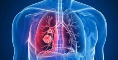 疾病最长潜伏期约14天!国家卫健委发布新版新型肺炎防控方案