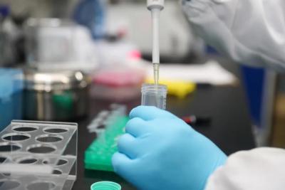 研究显示:新冠病毒可能会感染脑细胞
