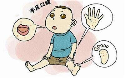 健康|手足口病進入高發期 傳播系數是新冠病毒的3倍