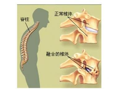 强直性脊柱炎治疗的几大常见误区,你都清楚吗?