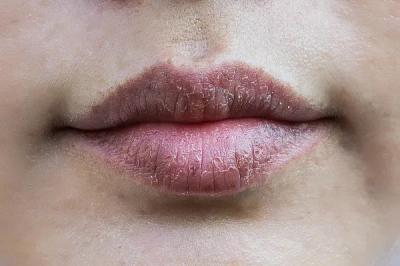 一到秋天嘴唇就起皮?原来错了那么多年,润唇膏应该这样涂