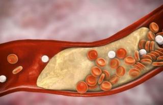 关于血脂最常见的4个误区,千万别小看!