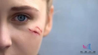 身上這三種疤痕趕緊處理,或可變成癌!